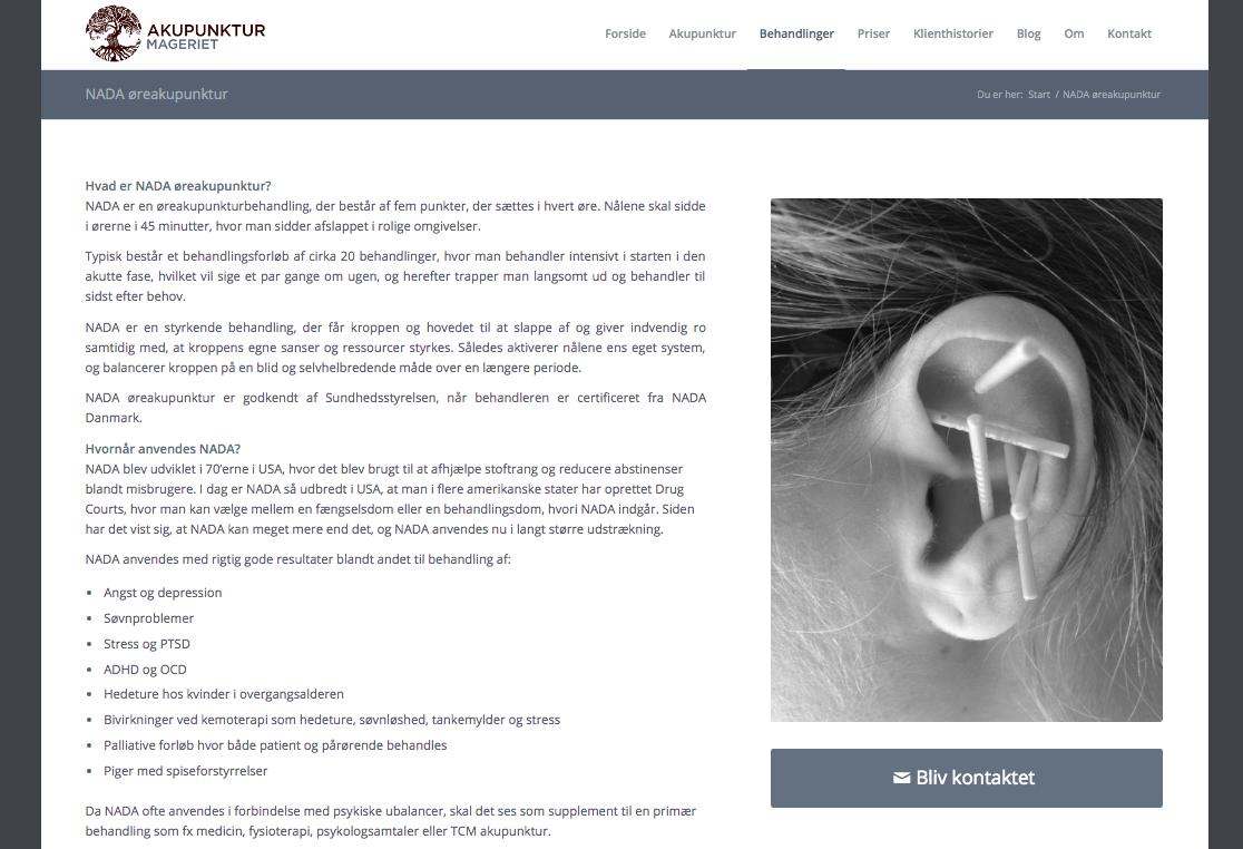 AkupunkturMageriet
